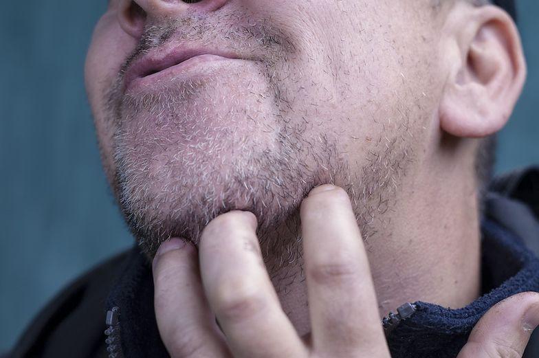 Objawy chorych nerek widać na skórze