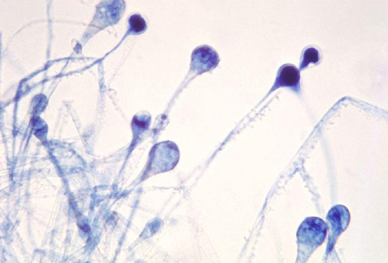 Rzadka choroba atakuje chorych na COVID-19. Rozwija się szybciej niż zwykle