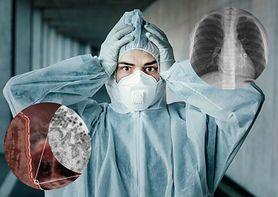 Groźne powikłania po chorobie COVID-19. Jakie narządy może uszkodzić koronawirus?