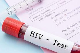 HIV rozprzestrzenia się w Rosji. Ponad milion nosicieli wirusa
