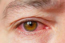 Zapalenie spojówek - objawy, przyczyny, leczenie, profilaktyka