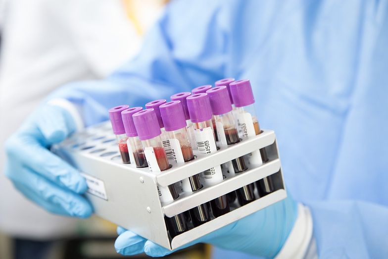 Polski lek na koronawirusa. Nadzieje są ogromne. Nie tylko terapia, ale też profilaktyka.