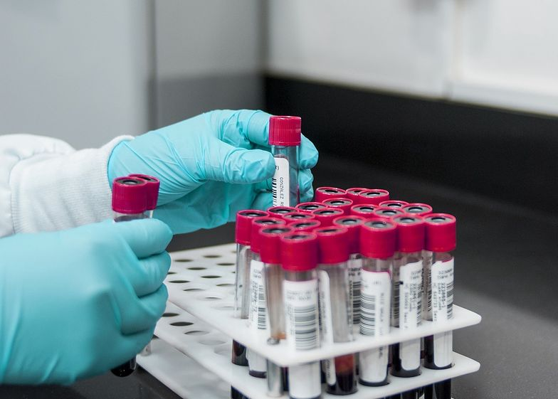 Polski lek na koronawirusa. Biomed wystartował z produkcją.