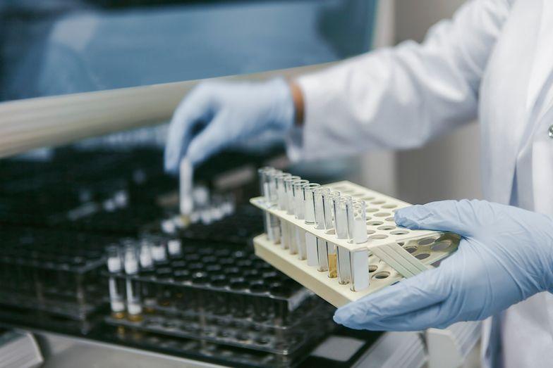 Zdecydowana większość testów i technologii ich wytwarzania i przeprowadzania to produkty od firm zagranicznych, głównie z USA i Europy Zachodniej.
