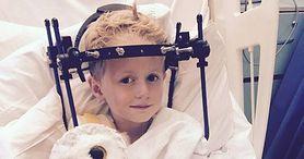 Lekarze przeoczyli złamanie kości u pięcioletniego chłopca (WIDEO)