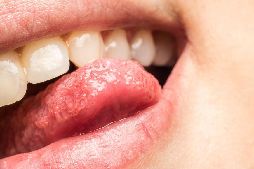 Przyczyny pieczenia języka [123rf.com]