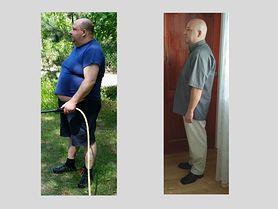 Operacje bariatryczne - ratunek dla osób cierpiących na otyłość