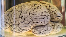 Naukowcy wyhodowali ludzki mózg