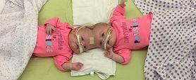 Lekarze rozłączyli bliźniaczki syjamskie połączone głowami!