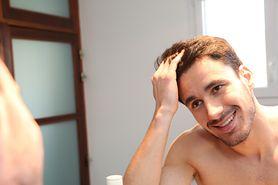 Hormony tarczycowe a łysienie