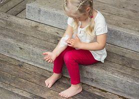 Mięczak zakaźny - charakterystyka, objawy, rozpoznanie, leczenie, zapobieganie