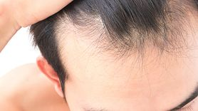 Alopexy - działanie, stosowanie, przeciwwskazania, skutki uboczne