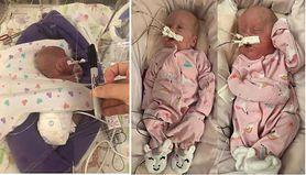 Malutkie bliźniaczki. Dziewczynki urodzone w 22. tygodniu ciąży przeżyły