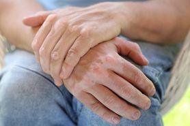Piodermia zgorzelinowa – przyczyny, objawy i leczenie