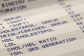 Dobry cholesterol - właściwości, sposoby na podniesienie