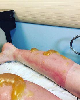 Chroń swoją skórę przed poparzeniami słonecznymi
