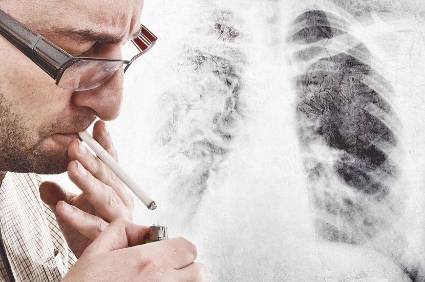 Nietypowe objawy raka płuc na skórze [123rf.com]