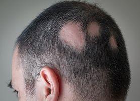 Domowe sposoby na łysienie