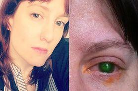 Prawie straciła wzrok po kąpieli w basenie. Widzi dzięki przeszczepowi