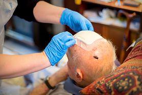 Krwiak mózgu – przyczyny, objawy, leczenie