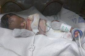 Chłopiec, który urodził się bez skóry ma już 7 miesięcy