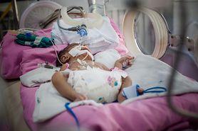 Okrzyknięto ją najmniejszym noworodkiem, gdy urodziła się w 21. tygodniu ciąży. Teraz ma 3 lata