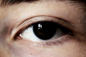 Co oczy mówią o twoim zdrowiu? (WIDEO)