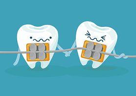 Aparat ortodontyczny - charakterystyka, rodzaje, rodzaje aparatów stałych, higiena zębów