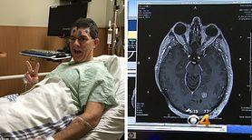 """""""Czuję się świetnie"""" - mówi człowiek, z którego mózgu lekarze wycięli 98 guzów"""