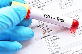 TSH w ciąży – niskie stężenie, wysokie stężenie