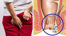 Hemoroidy to poważna choroba cywilizacyjna. Oto skuteczny preparat na ich leczenie, który działa już po kilku minutach