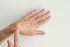 Usuwanie ganglionów – charakterystyka, przyczyny, objawy, przebieg, operacja