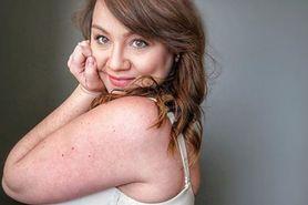 Ciało po ciąży. Młoda mama pokazuje, jak wygląda bez retuszu