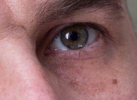 Nietypowy objaw raka płuc. Chorobę mogą zdradzić oczy