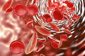 Hematokryt w ciąży - analiza wyników krwi, niedokrwistość ciężarnych