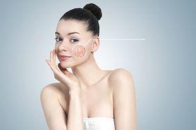 Popękane naczynka na nosie – przyczyny problemu i leczenie