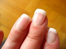 Domowe sposoby na ładne paznokcie - osłabione paznokcie, pielęgnacja