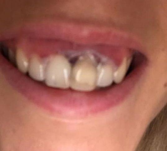 Zęby po zabiegu