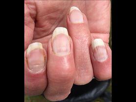 Covidowe paznokcie. Coraz częstszy objaw u zakażonych koronawirusem