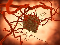 Produkty, które zmniejszają ryzyko raka jelita grubego