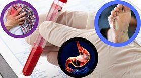 Grupa krwi ma wpływ na wystąpienie poważnych chorób! Sprawdź, na co możesz zachorować