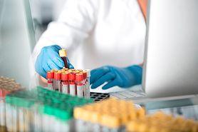 Elektroforeza białek surowicy krwi (proteinogram) - wskazania, normy, wyniki