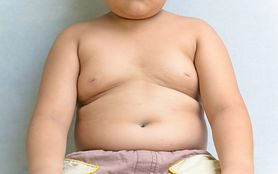 Zamiast na nadwagę, leczą dzieci na hashimoto