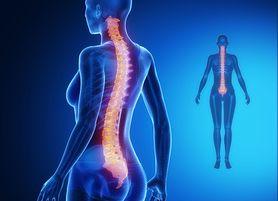 Ćwiczenia na skoliozę – skolioza, leczenie, rodzaje