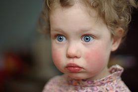 Czerwone policzki u dzieci i niemowląt
