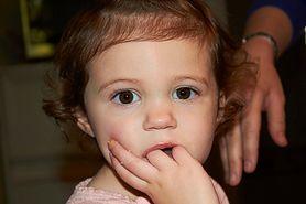 Zanokcica - choroba skóry i paznokci. Objawy, leczenie
