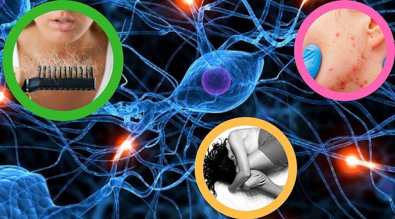 Objawy zmian hormonalnych to między innymi wypadanie włosów, depresja oraz trądzik