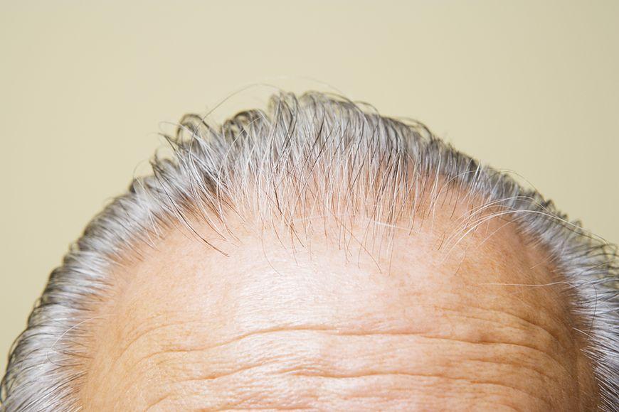 Włosy nie zmieniają koloru na siwy