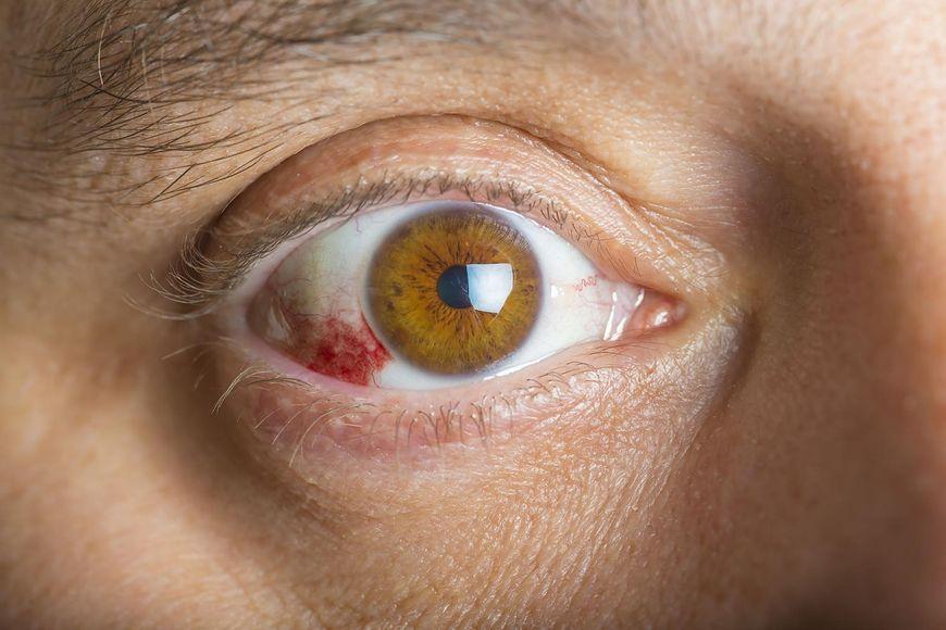 123rf.com Wylewy podspojówkowe mogą być objawem chorób