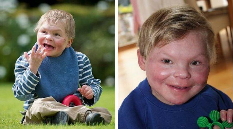 Angus jest pierwszym na świecie dzieckiem, u którego zdiagnozowano takie zaburzenie chromosomów